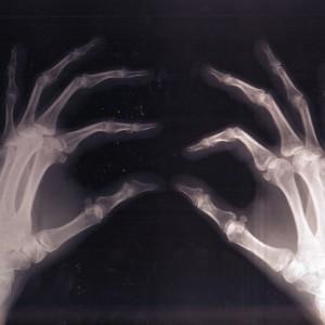 【医療】骨の再生促す素材を歯科治療用に製品化 欠損部分に埋め込むと骨が約6カ月で再生 東洋紡 [15/04/14]