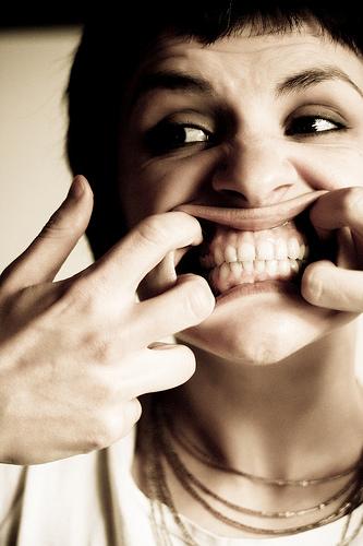 前歯虫歯になったら8万治療費かかるって言われたけど質問ある?