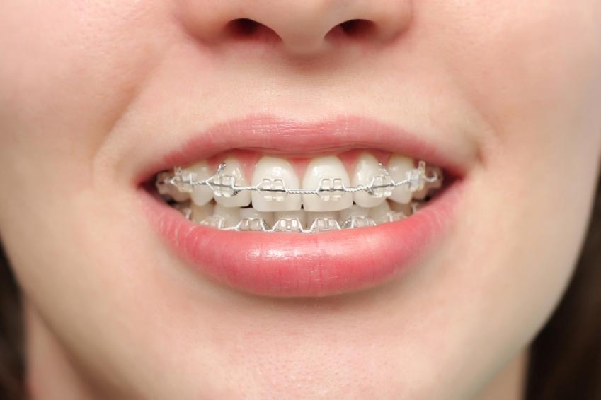 外国人「なんで日本人は歯の矯正しないの?八重歯とか口臭の原因なんだが?」