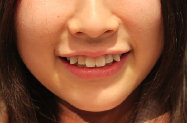 八重歯のどこが可愛いの