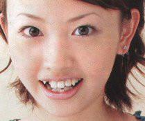 【画像】可愛い女の子の歯並び悪かった時のがっかり感は異常ww