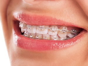 矯正歯科医「奥の埋もれた親知らずは抜きづらいから抜かないで」